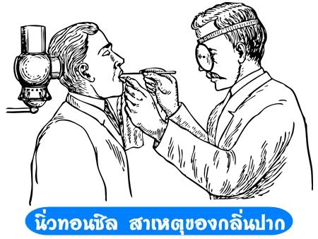 นิ่วทอนซิล,ปัญหากลิ่นปาก,รักษากลิ่นปาก,สาเหตุกลิ่นปาก