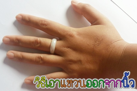 วิธีเอาแหวนออกจากนิ้ว