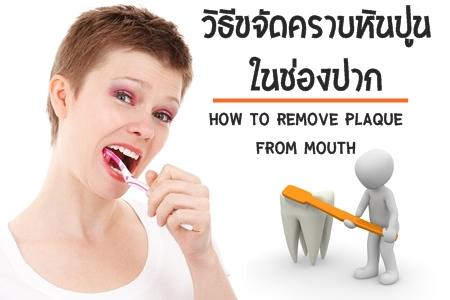 วิธีขจัดคราบหินปูนในปาก