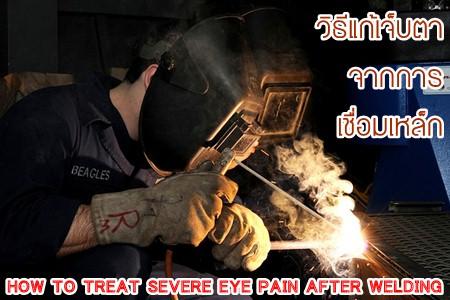 วิธีแก้เจ็บตาจากการเชื่อมเหล็ก